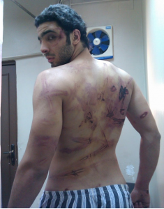 Ramy Essam tortured
